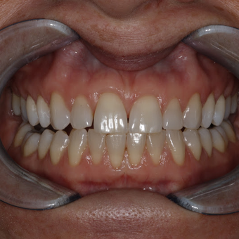 35-44 year old woman treated with Teeth Whitening before 3134866