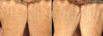 55-64 year old woman treated with Photofacial for hands before 2094249