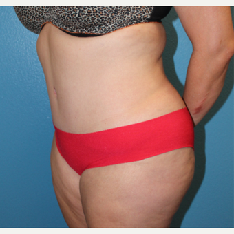 25-34 year old woman treated with Tummy Tuck after 3846289