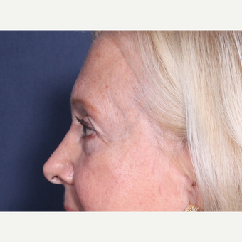 65-74 year old woman treated with Eyelid Surgery (view 2 of 2) after 3709331
