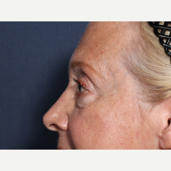 65-74 year old woman treated with Eyelid Surgery (view 2 of 2) before 3709331