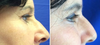 45-54 year old woman treated with Eyelid Surgery after 3191440