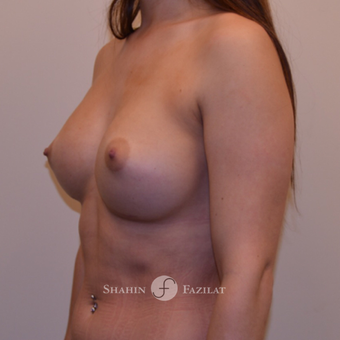 25-34 year old woman treated with Breast Augmentation after 3702743