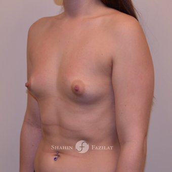 25-34 year old woman treated with Breast Augmentation before 3702743