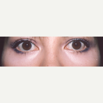 18-24 year old woman treated with Eye Bags Treatment after 3545012