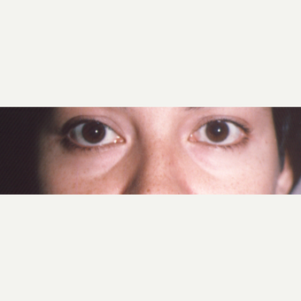 18-24 year old woman treated with Eye Bags Treatment before 3545012