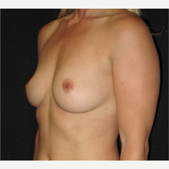 35-44 year old woman treated with Breast Augmentation before 3338432