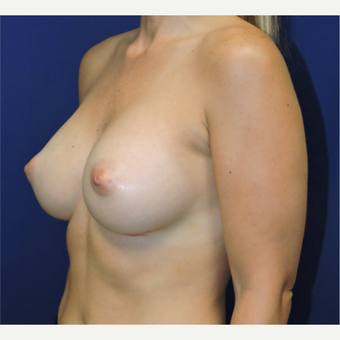 35-44 year old woman treated with Breast Augmentation after 3338432