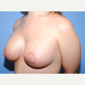 25-34 year old woman treated with Breast Lift with Implants after 3763261
