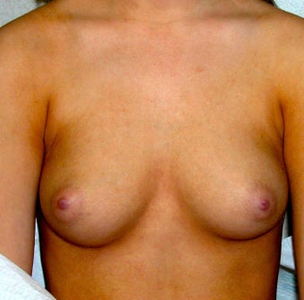 Breast Augmentation before 1211275