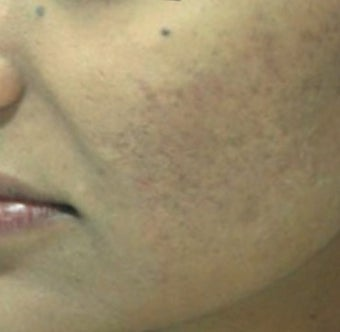 25-34 year old woman treated with Derma Roller after 1789340