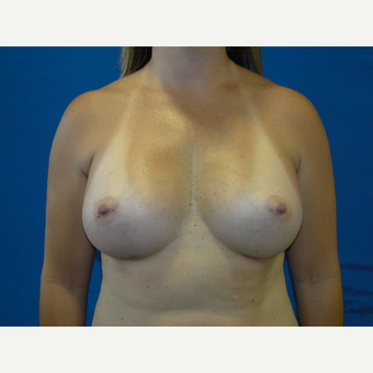 450 cc Silicone Breast Implants after 3623146