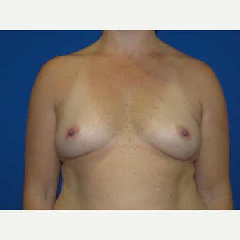 450 cc Silicone Breast Implants before 3623146