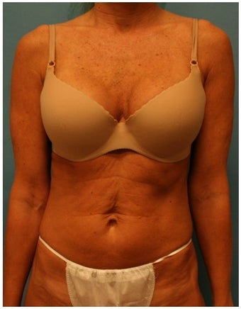 49 Year Old Female Tummy Tuck before 1244624