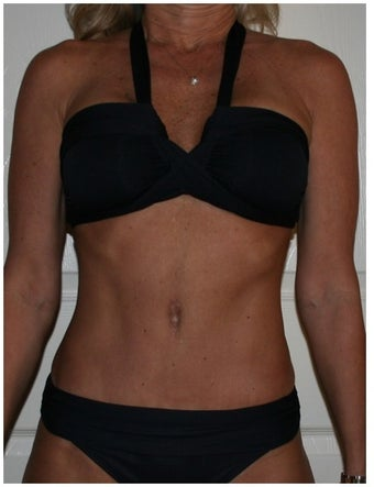 49 Year Old Female Tummy Tuck after 1244624
