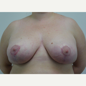 25-34 year old woman treated with Breast Reduction after 3833049