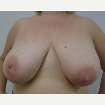 25-34 year old woman treated with Breast Reduction before 3833049