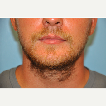 25-34 year old man treated with ThermiTight and Chin Implant after 3059733