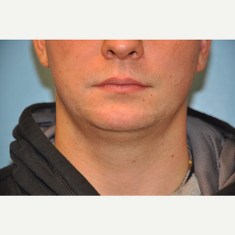 25-34 year old man treated with ThermiTight and Chin Implant before 3059733