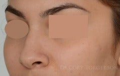18-24 year old woman treated with Rhinoplasty before 3259601