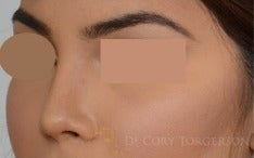 18-24 year old woman treated with Rhinoplasty after 3259601
