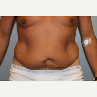 55-64 year old man treated with Tummy Tuck before 3529020