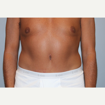 55-64 year old man treated with Tummy Tuck after 3529020