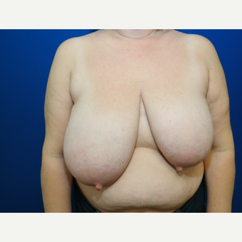 45-54 year old woman treated with Breast Reduction before 3103226
