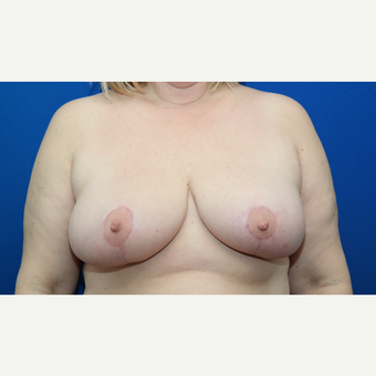 45-54 year old woman treated with Breast Reduction after 3103226