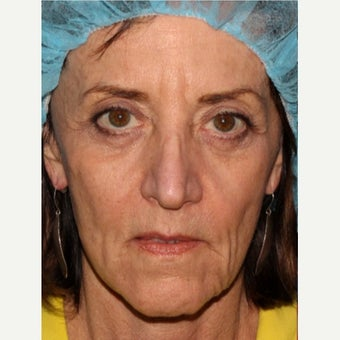 55-64 year old woman treated with Voluma before 1592620