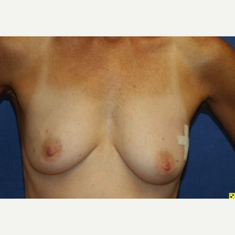 60 year old woman treated Fat Transfer breast augmentation before 3702525