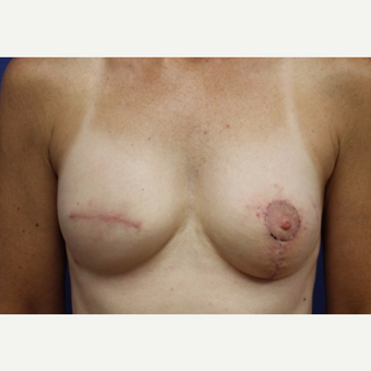 60 year old woman treated Fat Transfer breast augmentation after 3702525