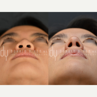 25-34 year old woman treated with Asian Rhinoplasty before 2876149