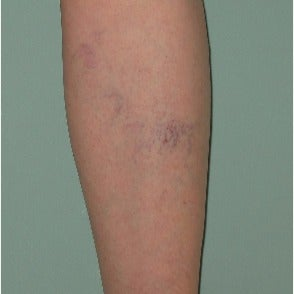 55-64 year old woman treated with Sclerotherapy before 2533002