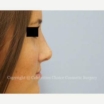 18-24 year old woman treated with Rhinoplasty after 3337780