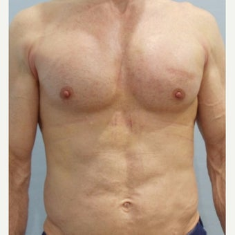 Man treated with Pec Implants after 2565280