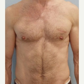 Man treated with Pec Implants before 2565280
