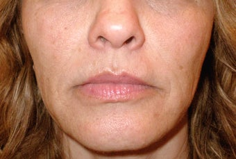 Sculptra for Volume Loss after 123669