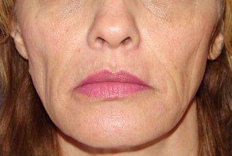 Sculptra for Volume Loss before 123669