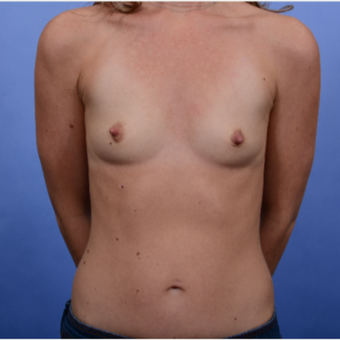 30 year old mother of 2 with Inspira SRF 370 submuscular breast implants before 3052082