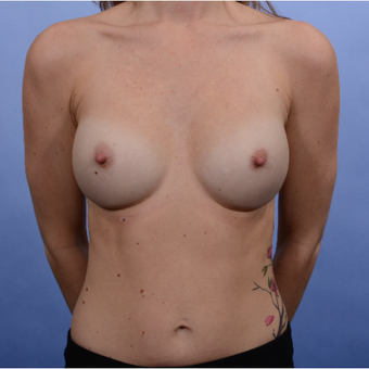30 year old mother of 2 with Inspira SRF 370 submuscular breast implants after 3052082