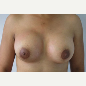 Breast Augmentation after 3054932