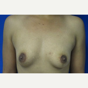 Breast Augmentation before 3054932