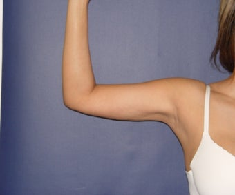 Vaser Liposuction of Arms