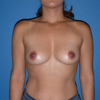 25-34 year old woman treated with gummy bear Breast Implants before 2995856