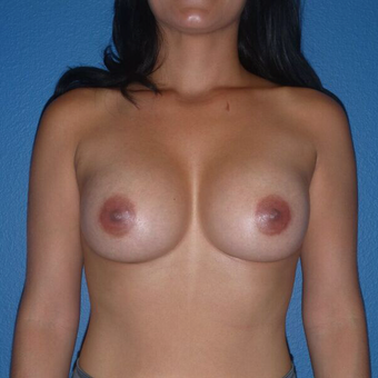 25-34 year old woman treated with gummy bear Breast Implants after 2995856
