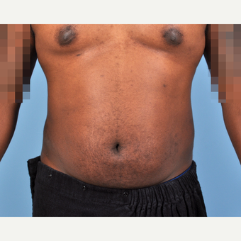 25-34 year old man treated with Liposuction after 3810091