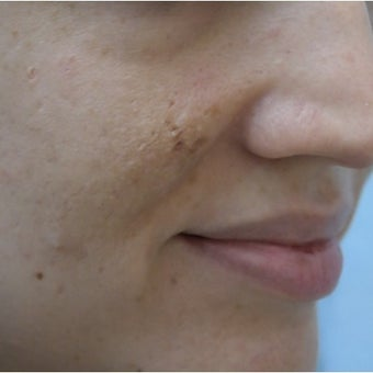 InMode Fractora for acne scarring and discoloration on cheeks before 1982743