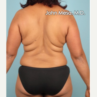 35-44 year old woman treated with Liposuction of flanks, back and sacrum before 3659831