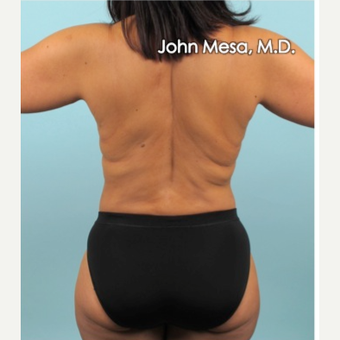 35-44 year old woman treated with Liposuction of flanks, back and sacrum after 3659831